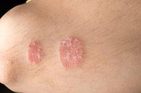 psoriasis flare up symptoms)