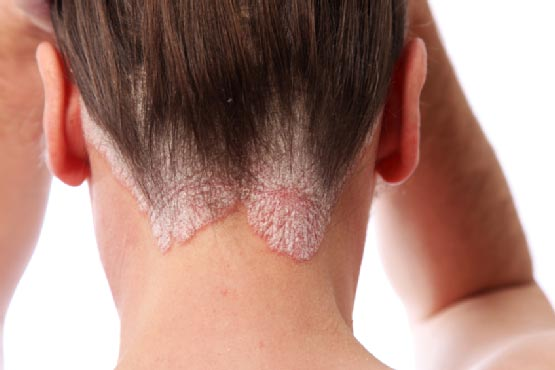Psoriasis on the back of a woman's neck