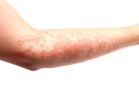 red skin reaction on forearm