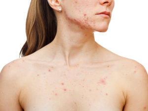 woman with acne scars