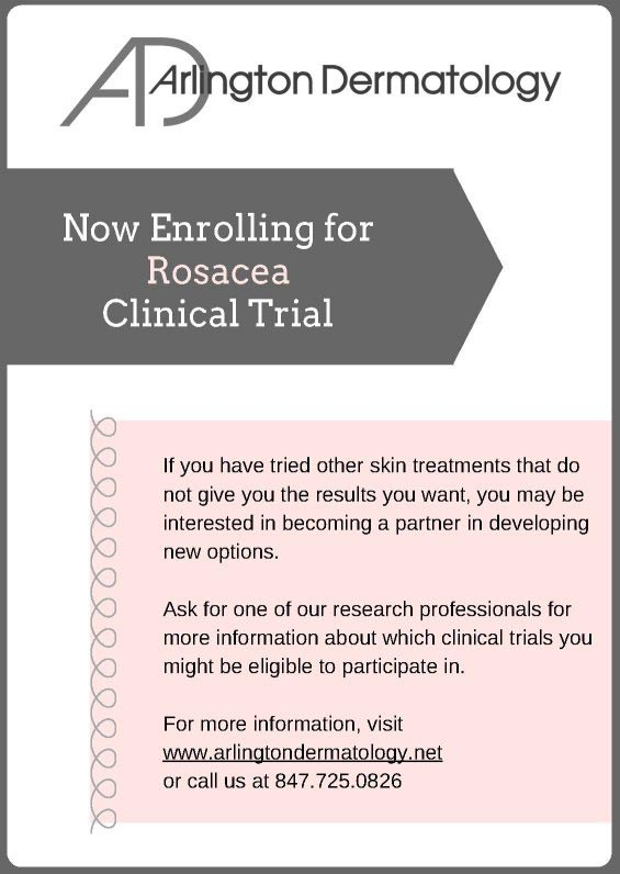 Rosacea clinical trial flyer