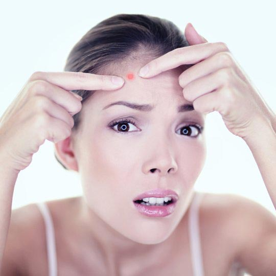 woman pointing to pimple on forehead