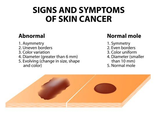 signs and symptoms of skin cancer infographic
