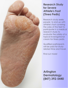 Research Study for Severe Athlete's Foot