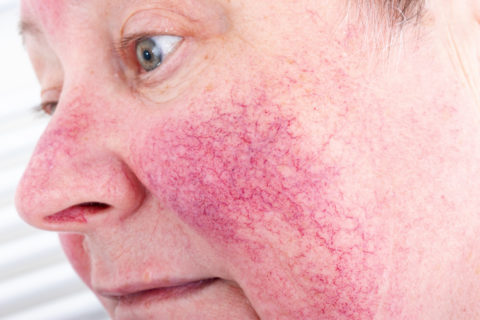 Skin Care Tips For Men With Rosacea Arlington Dermatology
